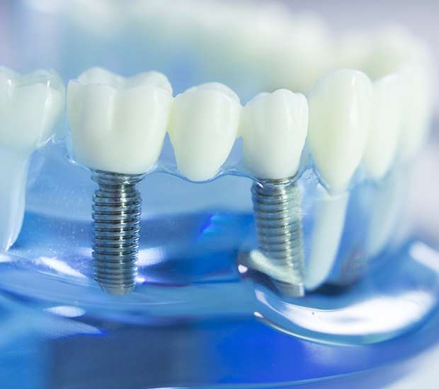Newport Beach Dental Prosthetics
