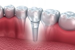 If You Want To Replace Your Dentures, Visit Our Cosmetic Dentist Office For Dental Implants