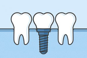 Dental Implants Are An Alternative To Dentures For Missing Teeth