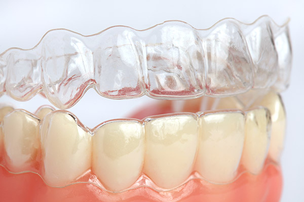 Are You A Candidate For Wearing Clear Aligners?