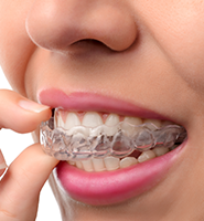 Clear Aligners - Almost Invisible Braces Newport Beach, CA